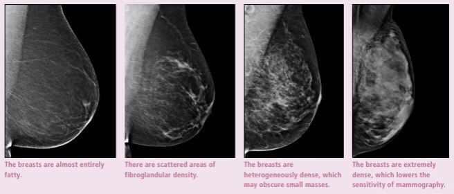 breast density mammos